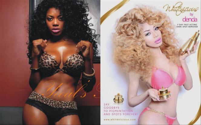 La chanteur Dencia et sa crème « contre les taches noires de la peau » Whitenicious.