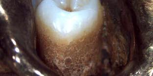 Aspect à la loupe binoculaire d'une dent et d'une prothèse dentaire métallique attribués à Adolf Hitler. Ce cliché a été communiqué par leDr Philippe Charlier, médecin légiste et anthropologue, qui a eu accès en juillet et septembre 2017 aux restes attribués à Adolf Hitler.