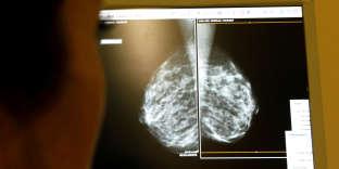 Examen d'une radio après une mammographie, à Nice, en 2008.