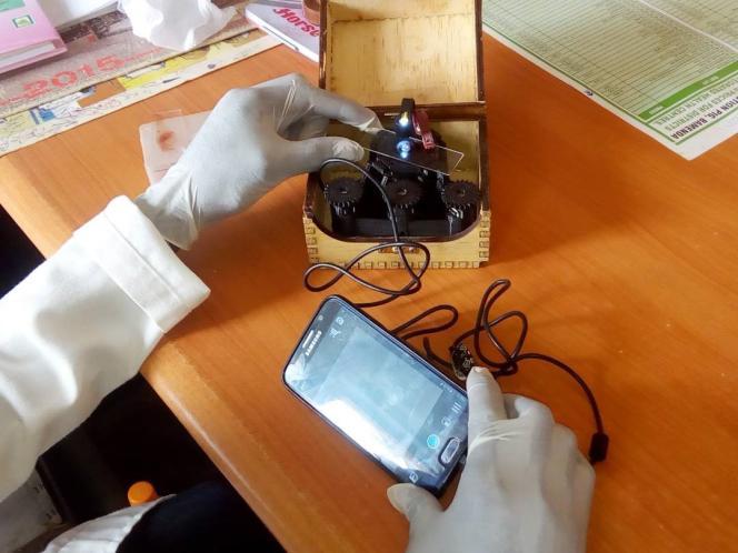 Pour ses opérations de dépistage, CerviScan utilise un microscope numérique équipé d'une caméra qui retransmet les images en direct sur un smartphone ou une tablette.