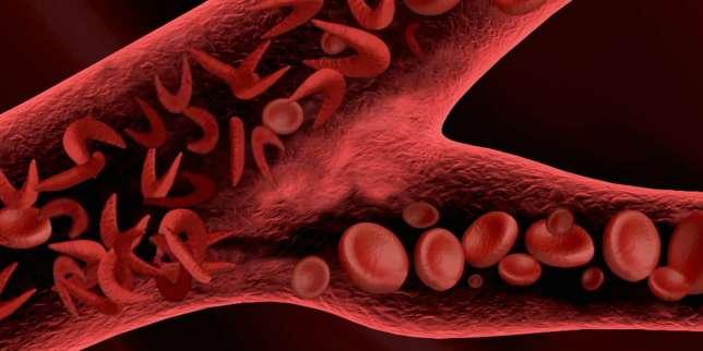 Dans la drépanocytose, les globules rouges prennent une forme de faucille.