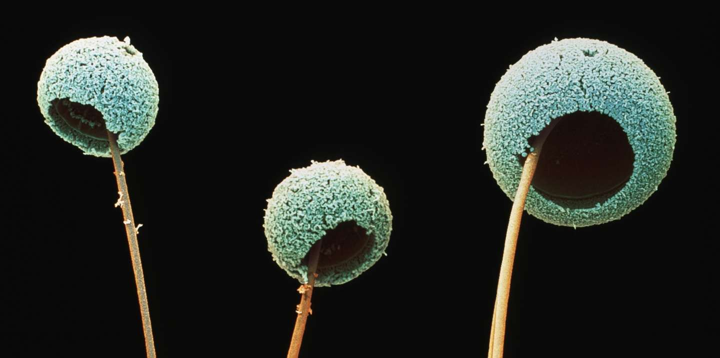 Aspergillus fumigatus fungus. Coloured scanning electron micrograph (SEM) of fruiting bodies of the fungus Aspergillus fumigatus. This fungus causes aspergillosis in humans. The round structures (conidia) are covered in tiny spores, about to be released into the air. A. fumigatus grows in household dust and decaying vegetable matter. Although harmless to healthy people, the fungus can cause complications in people with respiratory complaints or weakened immune systems. Inhalation of the spores may lead to aspergill- osis, infection of the lungs and bronchi, which can be fatal in some cases. Magnification unknown.