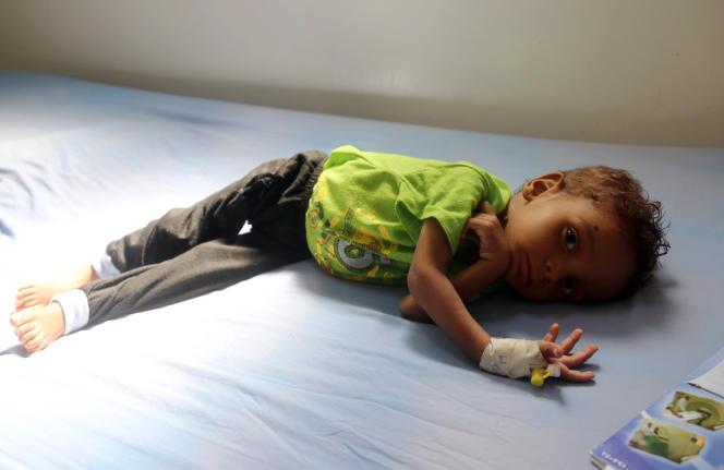 Un enfant souffrant de malnutrition est traité dans un hôpital d'Hodeïda, au Yémen, en novembre 2017.