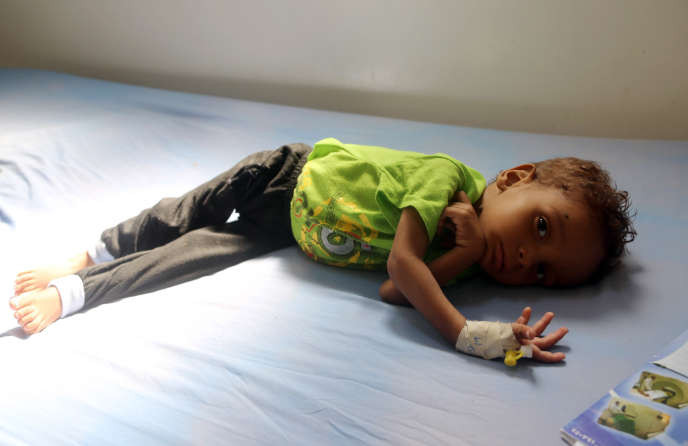 Un enfant malnutri àHodeïda, au Yémen, en 2017.