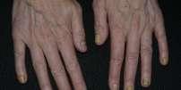 Ongles jaunes des doigts de deux mains.