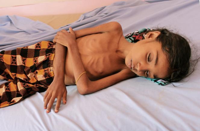 Une enfant yéménite souffrant de malnutrition dans un centre de traitement d'un hôpital de la province d'Hajjah, tenue par les rebelles houthistes, le 25 octobre.