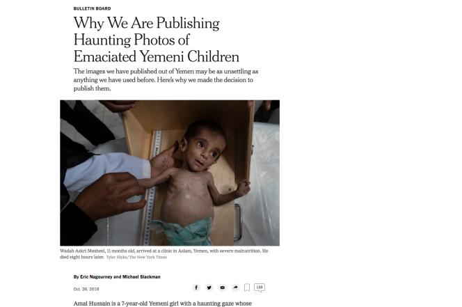 Wadah Askri Mesheel, 11 mois, gravement malnutri, à son arrivée dans un dispensaire à Aslam, au Yémen. Il est mort huit heures plus tard. Photo de Tyler Hicks pour le New York Times.