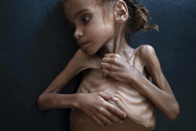 Un enfant yéménite souffrant de malnutrition sèvère, le 18 octobre dans une clinique d'Aslam, au Yémen.