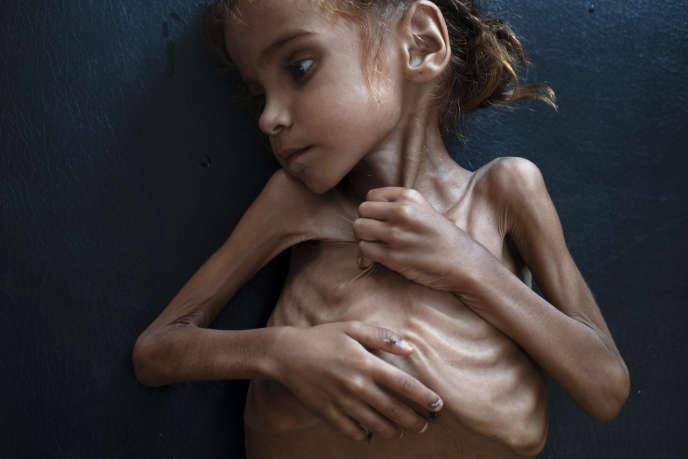 La photo de Tyler Hicks, publiée en une du New York Times le 27 octobre. «Amal Hussain, 7 ans, est en train de lentement mourir de faim » précise la légende. L'enfant a été photographié dans une clinique de l'UNICEF, le 18 octobre.