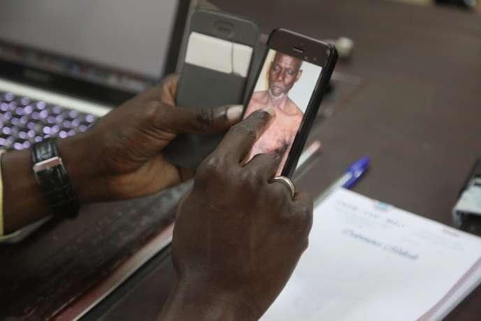 Un médecin du Centre national d'appui à la lutte contre la maladie, au Mali, examine une photo d'un patient souffrant d'une maladie de peau, à Bamako, le 30mai 2017.