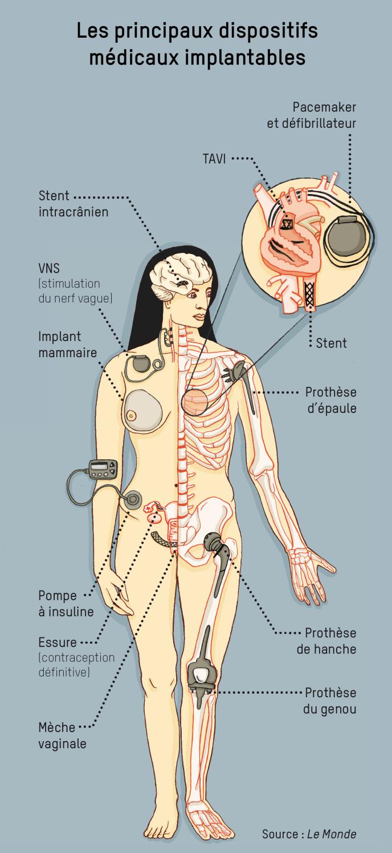Les principaux dispositifs médicaux implantables
