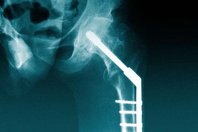 Prothèse de hanche, implant.