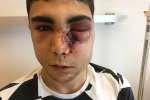 En marge des rassemblements de gilets jaunes, samedi 1er décembre à Paris, Mehdi K. s'est fait tabasser par huit CRS.