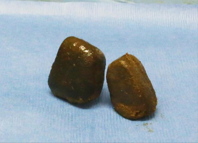 Crottes de wombat.