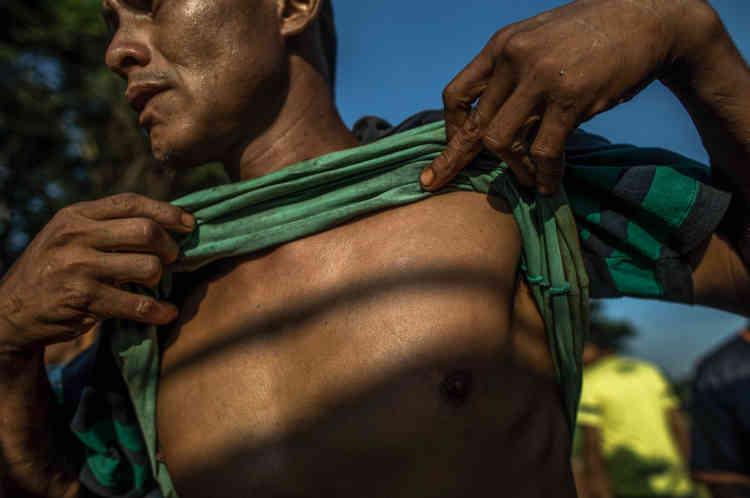 Yvyrakandy, combattant guarani-kaiowá, exhibe les cicatrices laissées par des pistoleirosà la solde des propriétaires terriens.