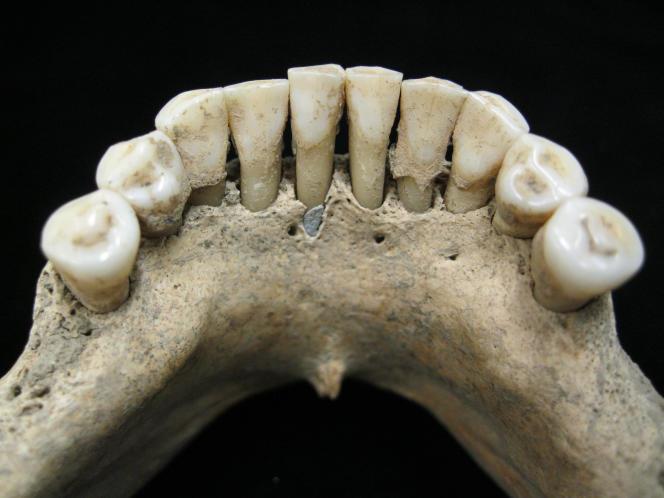 Mandibule de B78. Le tartre de ses dents contenait des particules de lapis-lazuli.