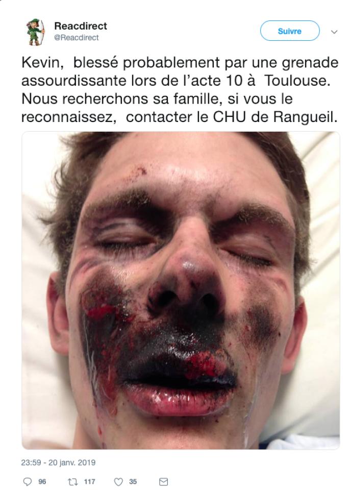 Non, cette photographie n'est pas celle d'un «gilet jaune» blessé le 19janvier