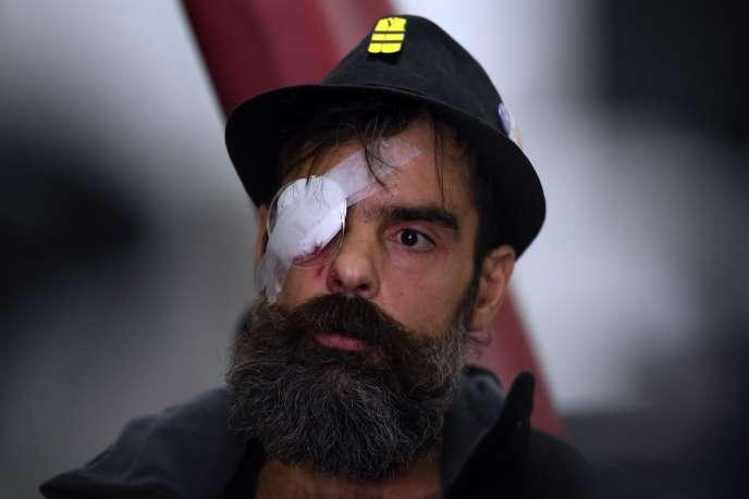 Jérôme Rodrigues, l'une des figures des«gilets jaunes» blessée à l'œil par une arme de police, s'ajoute à la longue liste des victimes déplorées sur les groupes de sympathisants.