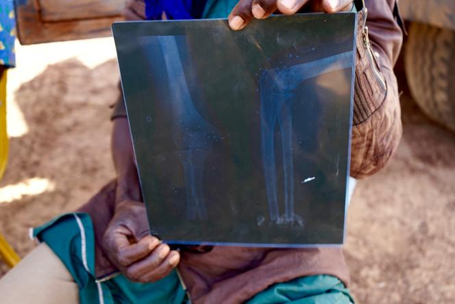Un rescapé réfugié à Barsalogho, au Burkina Faso, montre les impacts des balles reçues lors d'une fusillade à Foubé, le 1er janvier.