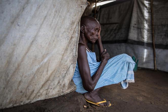 Une femme souffrant de tuberculose rachidienne dans le camp de déplacés de Mahad, au Soudan du Sud, en avril 2018.
