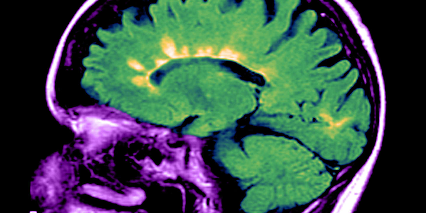 MRI of Multiple Sclerosis.  This color enhanced, sagittal (from the side) FLAIR MRI image of a person with long standing multiple sclerosis shows multiple hyperintense lesions (yellow) in the periventricular white matter which is characteristic of demyelinating lesions of MS. Multiple sclerosis is a demyelinating disorder of uncertain etiology. (Enhancement of BE8160)
