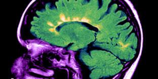 Coupe IRM de profil d'un cerveau atteint de sclérose en plaques.