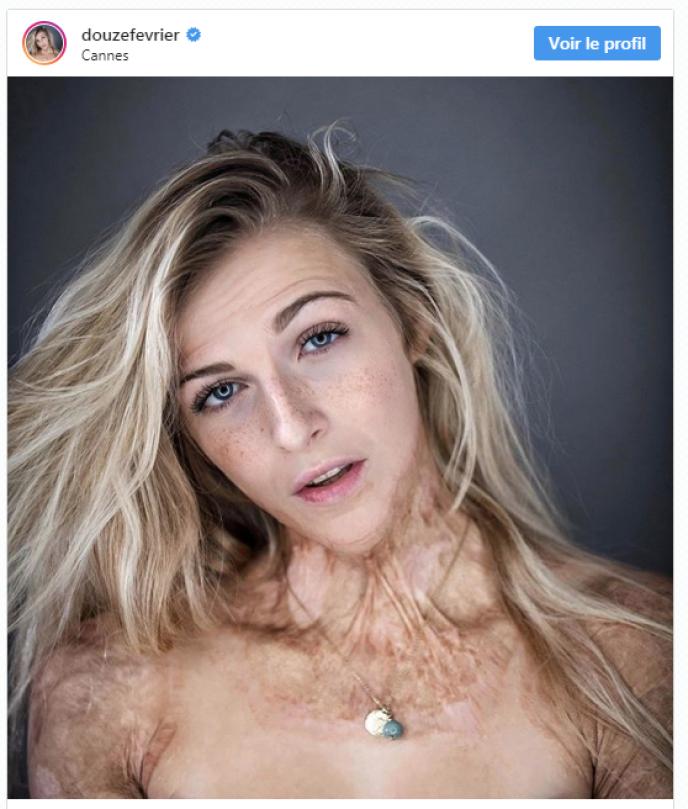 Sur Instagram, Julie assume ses brûlures. La représentation des corps différents dans la société est devenu son combat.