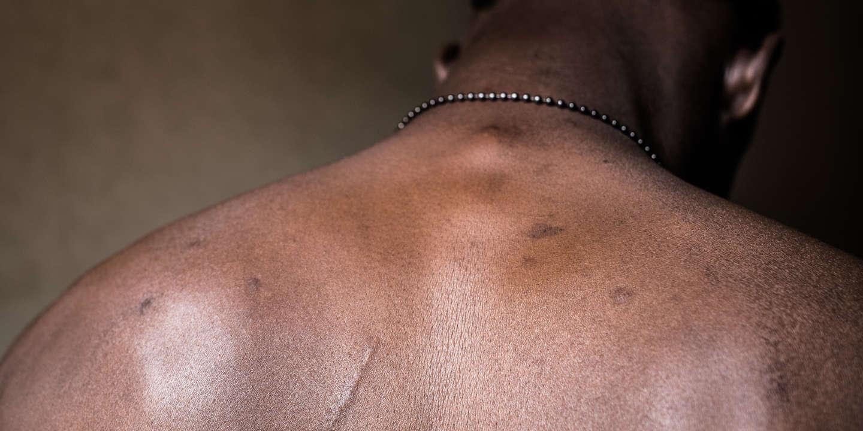 Portrait anonyme d'un des migrants qu'avait rencontré le photographe Cesar Dezfuli le 1er août 2016, et qu'il a ensuite retrouvé, sur le continent européen, en 2018. Plusieurs d'entre eux ont été enlevé et torturé en Libye. Séquestré, il ont subi des coups et des brûlures, et ont parfois été réduits au travail forcé, avant de parvenir à s'évader.