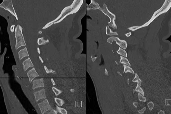 Scanners pré-opératoires montrant la fracture-subluxation à la jonction des 5e et 6e vertèbres cervicales.C5-6.