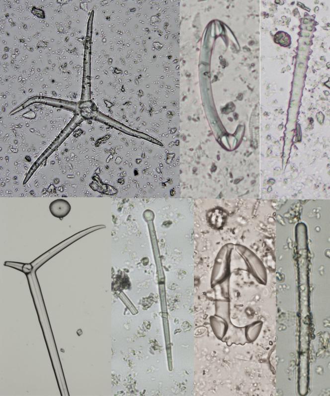 Morceaux de squelette d'éponge observés au microscope.