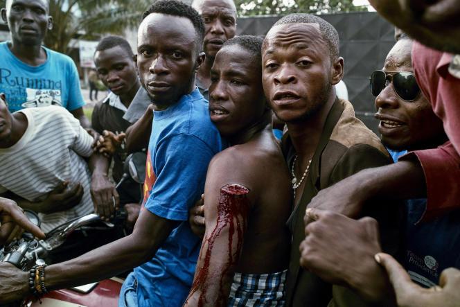 Un soutien de Félix Tshisekedi, touché par une balle des forces de sécurité, en mars 2017.