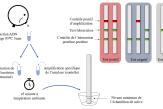 Comment des étudiants marseillais ont inventé un test de diagnostic de la tuberculose