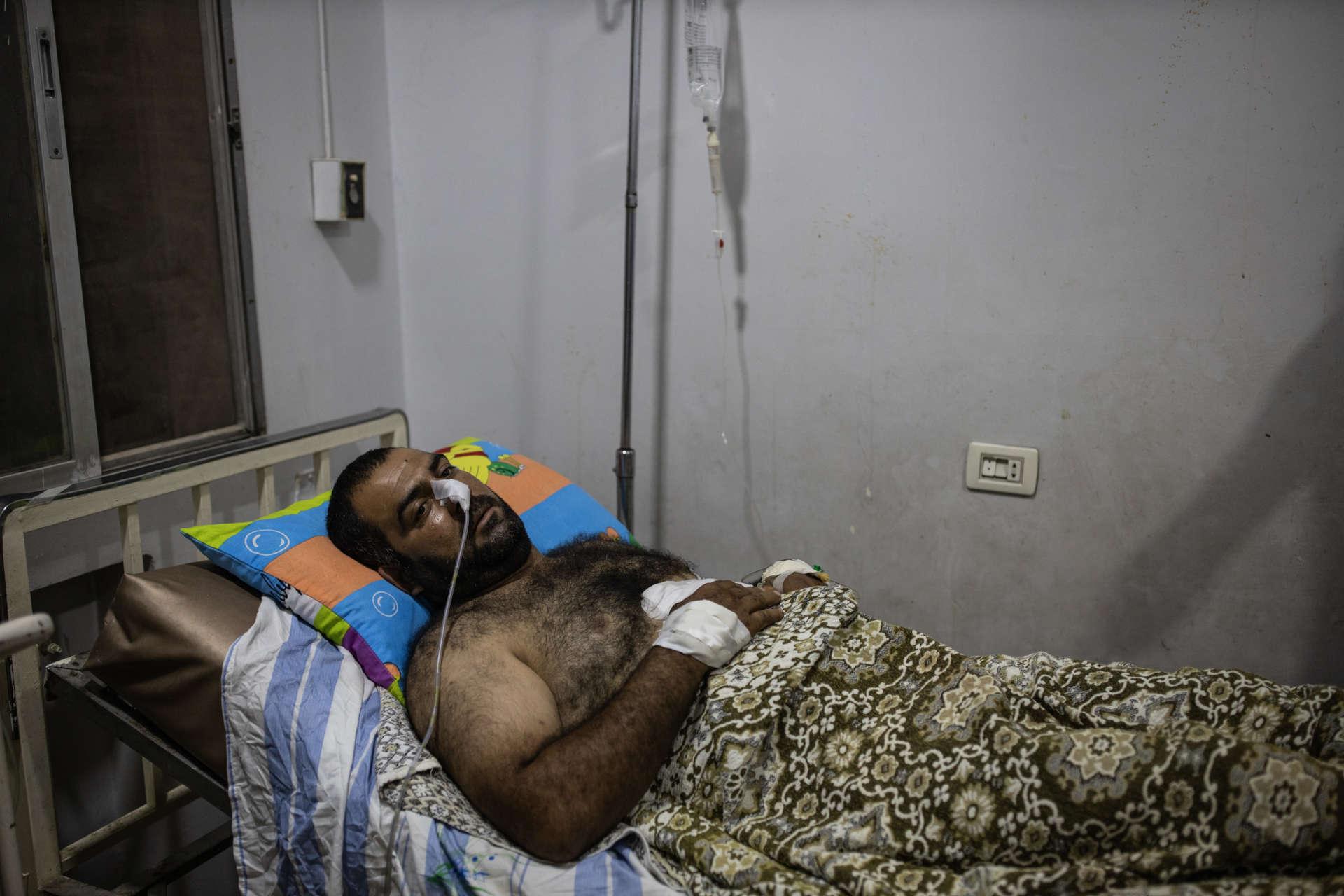Massoud a eu le ventre perforé par un bombardement turc. Il est soigné aux urgences de l'hopital Faraman, à Kamechliyé, le 12 octobre.