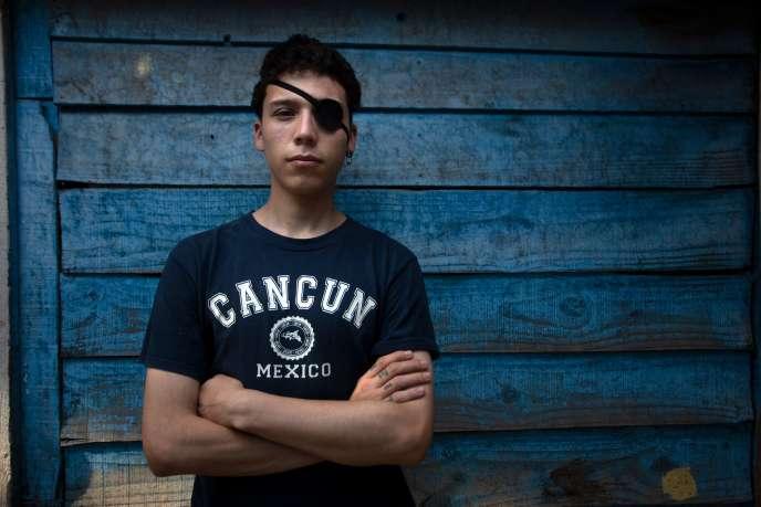 Carlos Vivanco, 18 ans, un étudiant blessé à l'oeil lors des manifestations au Chili.