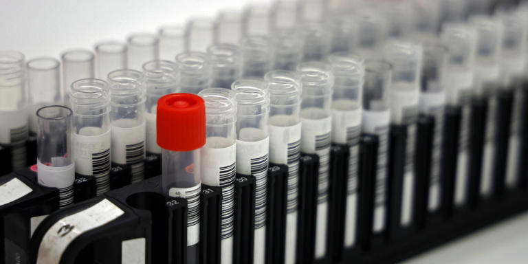 A picture shows samples suspected of being COVID-19 positive before analysis in a laboratory that analyses thousands of samples each day on April 22, 2020, in Levallois-Perret, near Paris, on the 37th day of a lockdown in France to stop the spread of the COVID-19 pandemic, caused by the novel coronavirus. (Photo by THOMAS COEX / AFP)