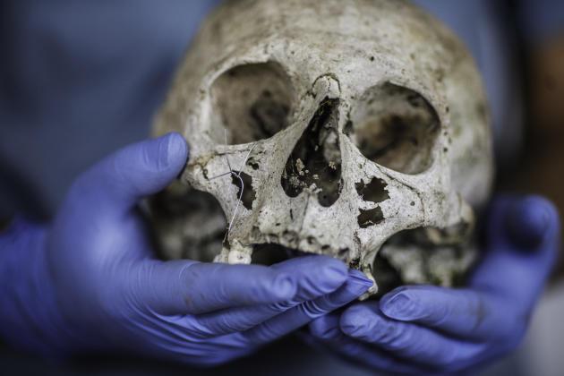 Un légiste étudie un crânedécouvert dans les charniers de la région, le 6 juillet.