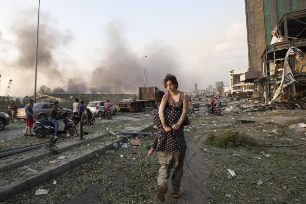 Une jeune fille blessée est évacuée à Beyrouth, le 4 août.