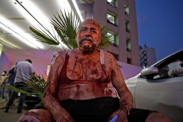 Un homme blessé attend de l'aide devant l'hôpital de Beyrouth, le 4 août.