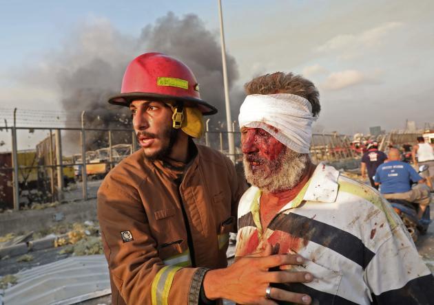 Un blessé est évacué, le 4 août à Beyrouth.