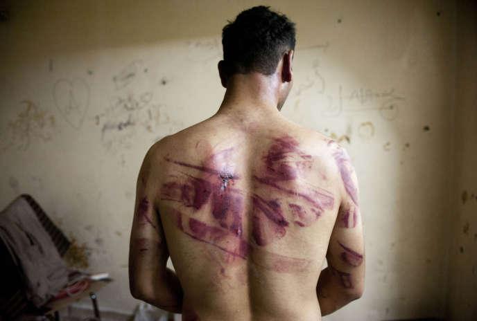 Un homme montre les marques des sévices qu'il a subis lors de sa détention par le régime syrien, à Alep, en août 2012.