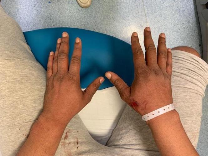 Photographie des mains de Michel, faite par son avocate pour constater les blessures dans la nuit du samedi 21 novembre.