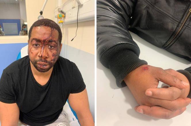Photographies de Michel faites par son avocate afin de constater les blessures dans la nuit du samedi 21 novembre.