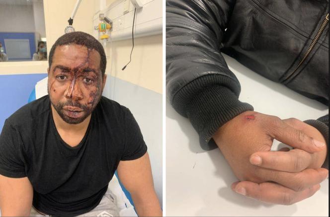 Photographies de Michel Zecler, par son avocate,afin de constater ses blessures, dans la nuit du samedi 21 novembre.