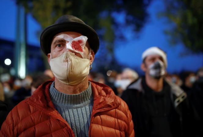 Un manifestant feint une blessure à l'oeil,lors d'une manifestation contre la loi « sécurité globale », le 27 novembre à Nantes.