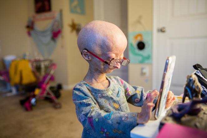 Adalia Rose, Texane de 13 ans, fait connaître la progeria à travers, notamment, son compte Facebook (12 millions d'abonnés) et sa chaîne YouTube (2,6 millions d'abonnés). Sur cette photo, elle a 11 ans.