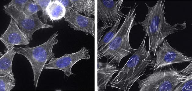 Cellules cancéreuses parentales (à gauche) et cellules cancéreuses persistantes (à droite).Ces dernières ont modifié leur cytosquelette, visible avec le marquage des filaments d'actine (en blanc).