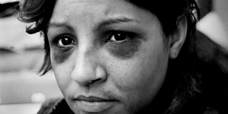 "Rita, Philadelphia, PA 1986 With two black eyes Rita gave her consent to be photographed she made history as the first battered woman on the cover of a national publication. She prosecuted and divorced her husband. Rita is unbeatable, the Philadelphia Inquirer.  --- Rita, Philadelphia, PA, 1986 Rita allowed a photographer to photograph her black eyes and tell her story. She wanted the world to know that she was beaten so badly in front of her sons that they could no longer recognize her. Against her mother's advice, Rita prosecuted and divorced her husband: ""It's going to be hard on my own, but I don't want this to happen again."" (The Philadelphia Inquirer Sunday Magazine, 1986)"