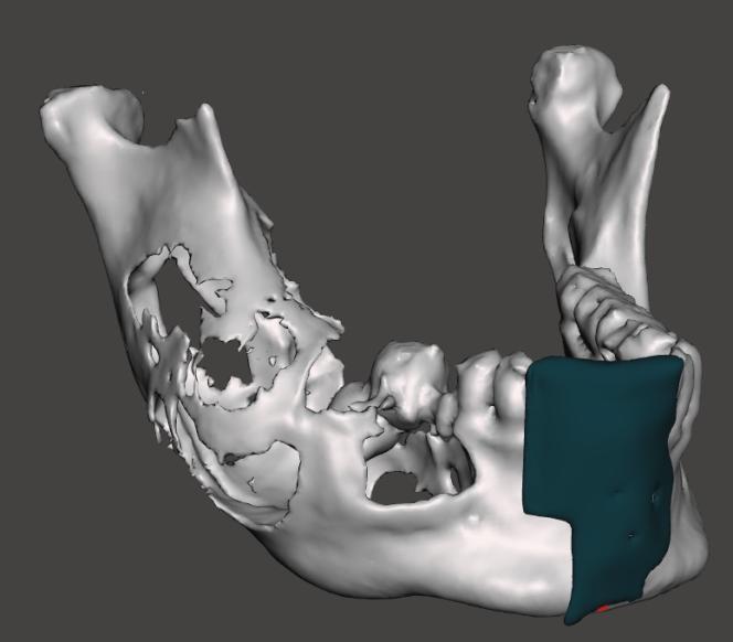 Après avoir modélisé la mâchoire nécrosée du patient d'après un scanner, le chirurgien crée le guide de coupe à imprimer.