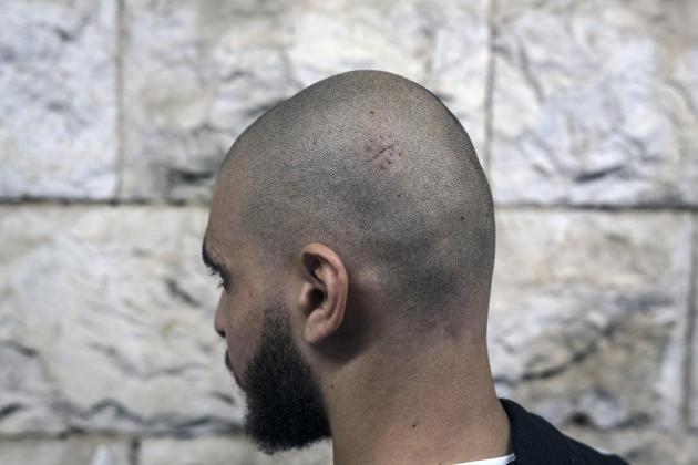 Omaïr, 21 ans, est un citoyen palestinien d'Israël. Il dit avoir été battu si violemment par la police le 12 mai qu'il a été hospitalisé, son râne recousu, et qu'il ressent toujours des vertiges. Le 2 juin 2021 àNazareth.