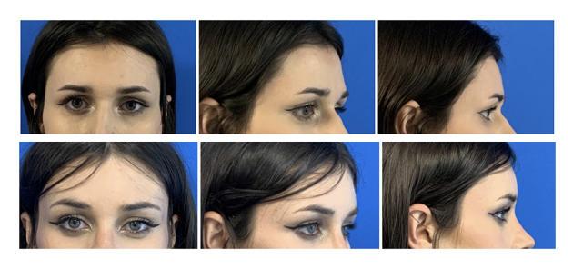 Une patiente de Quentin Qassemyar avant son opération du front (photos du haut) et deux mois après (photos du bas).